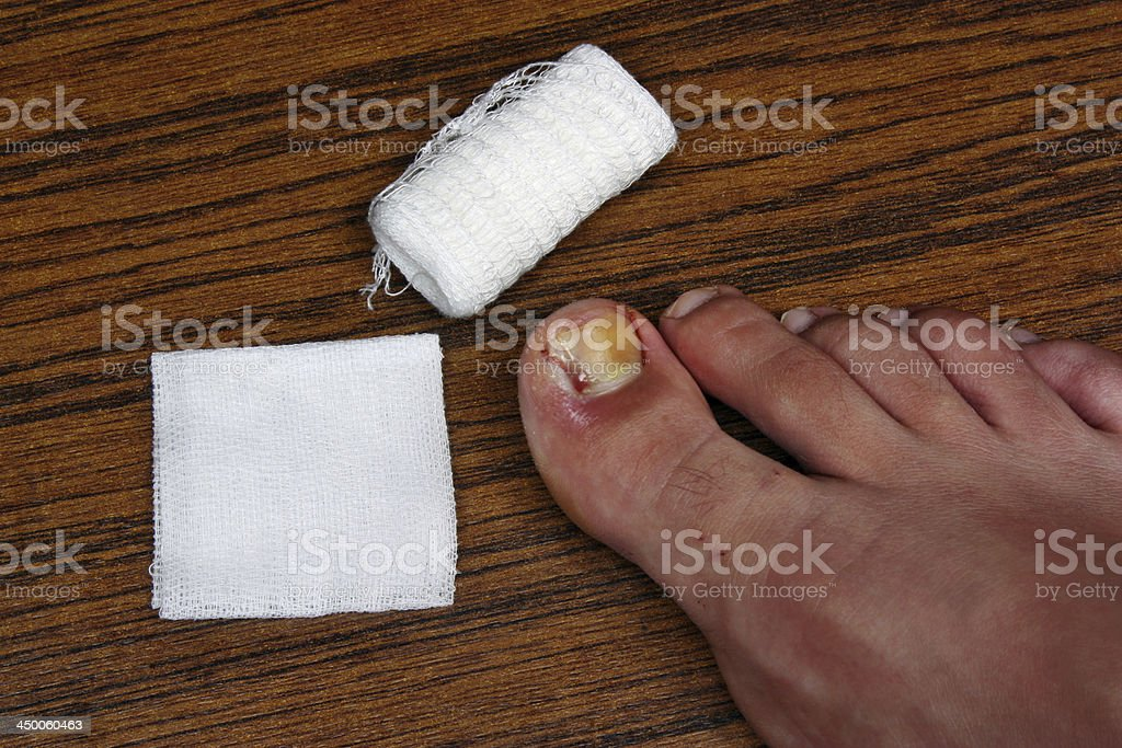 Treatment after the removal of ingrown toenail royalty-free stock photo