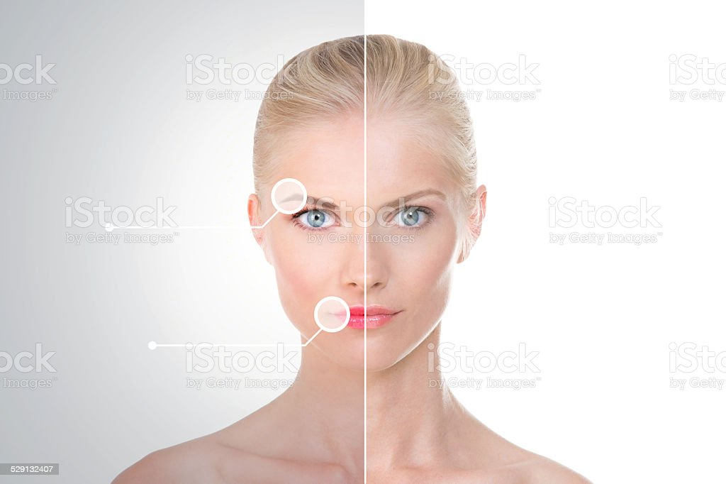 treatment before and after on nordic beauty stock photo