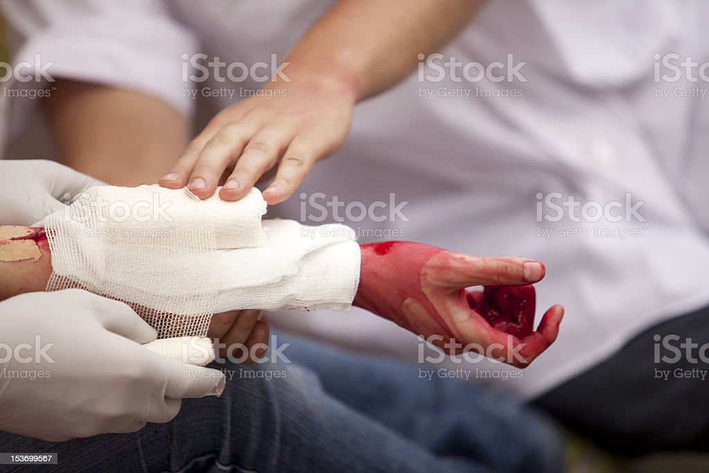 Treatment for an arm injury royalty-free stock photo