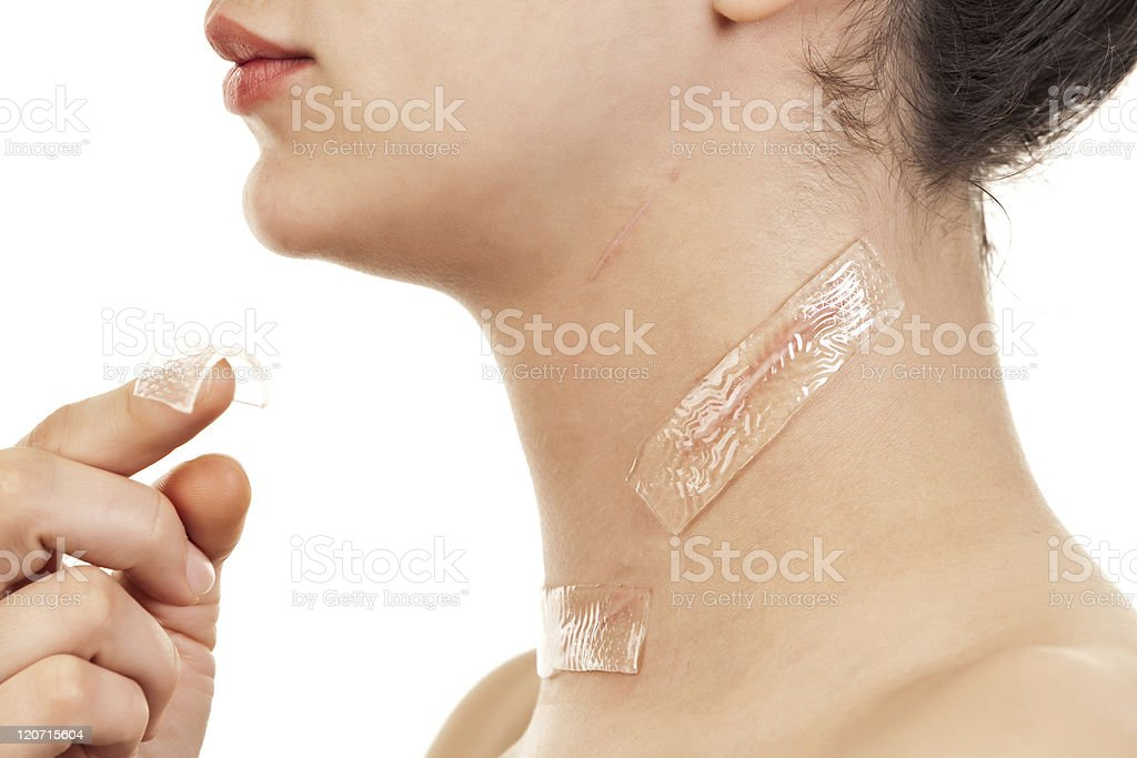 Treatment for Scars stock photo