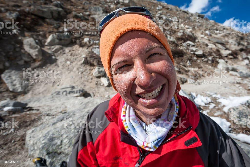 Trekker with burned skin on face is smiling at camera in Khumbu valley on a way to Everest Base camp stock photo