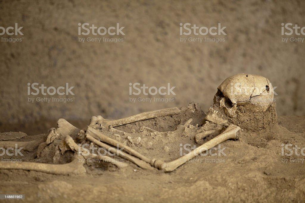 Trepanned skull stock photo