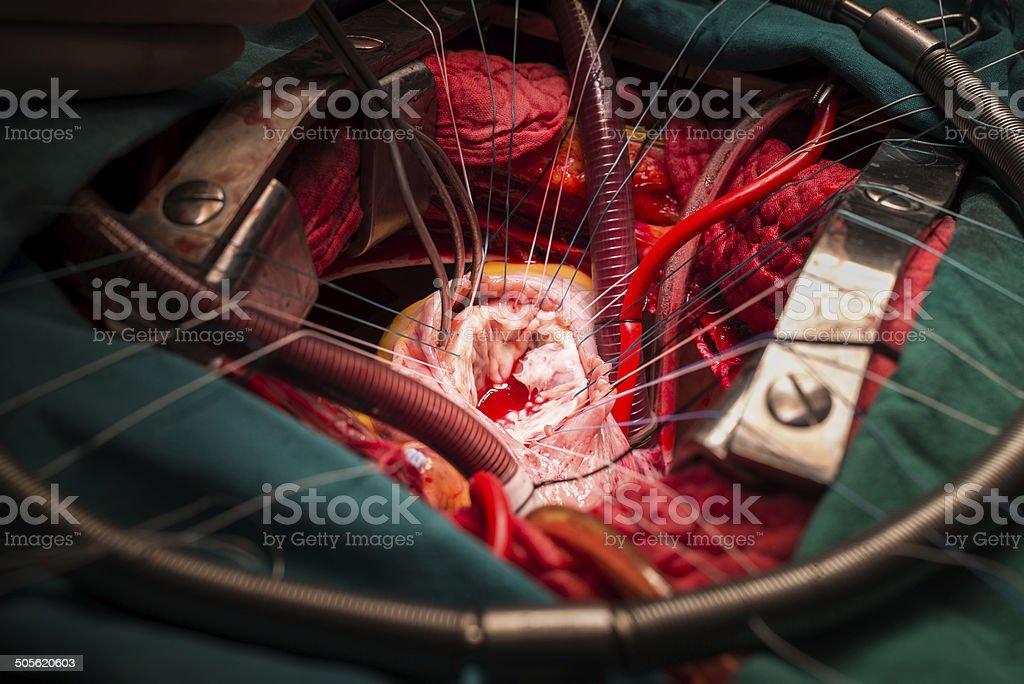 tricuspid valve repair stock photo