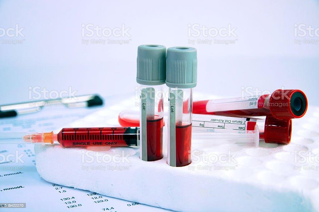tubes and syringe on hematology blood analysis report stock photo