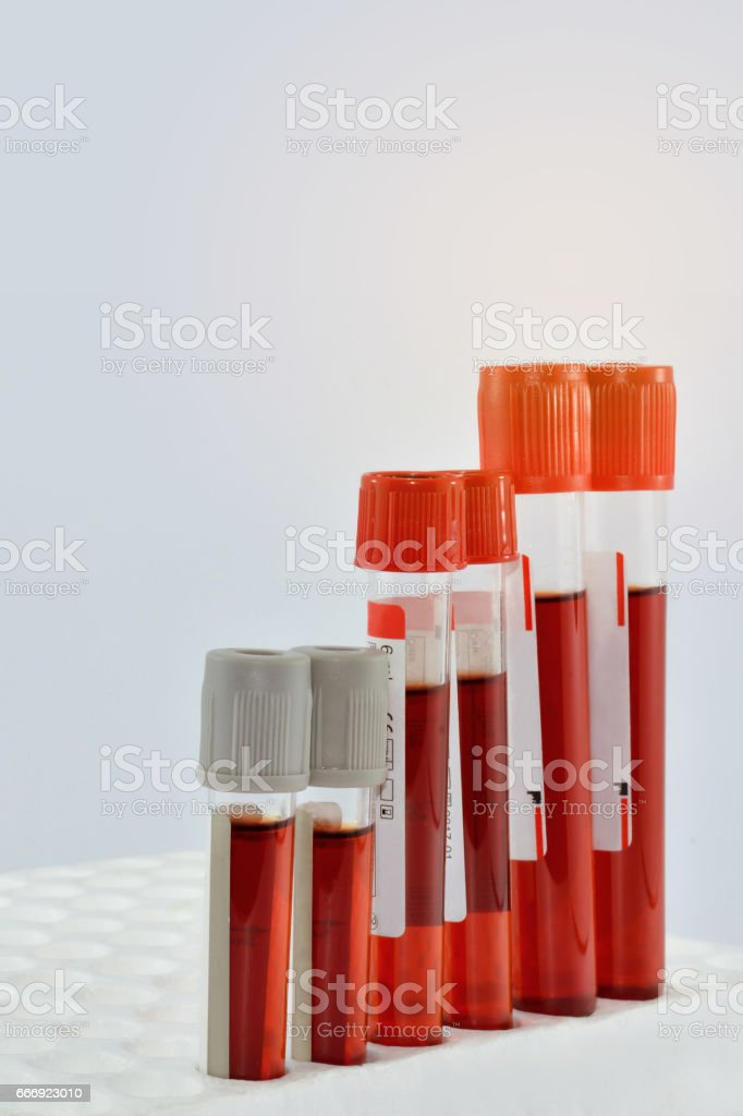 Tubes blood stock photo