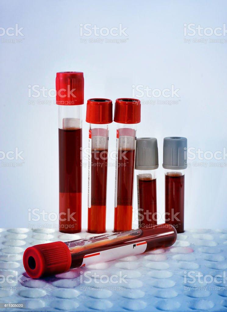 Tubes blood sample stock photo