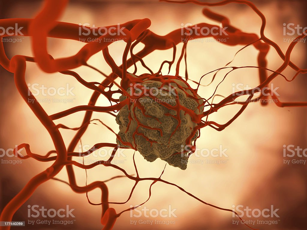 Tumor stock photo