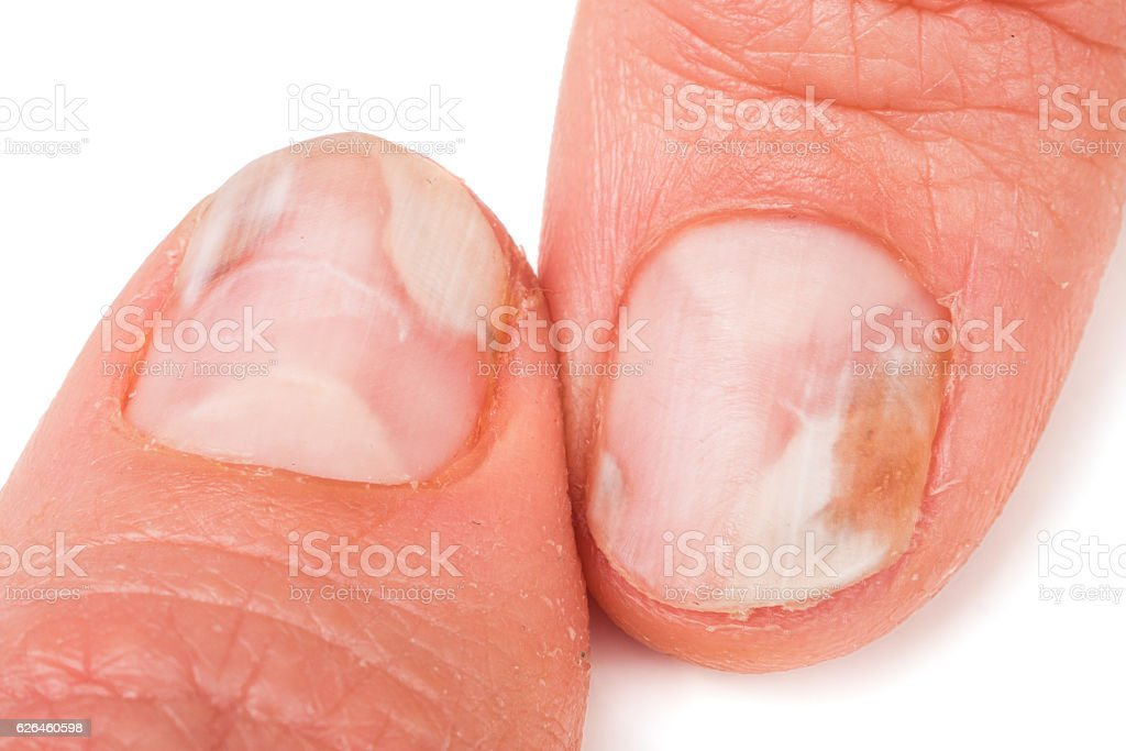two fingers of the hand with a fungus on the stock photo