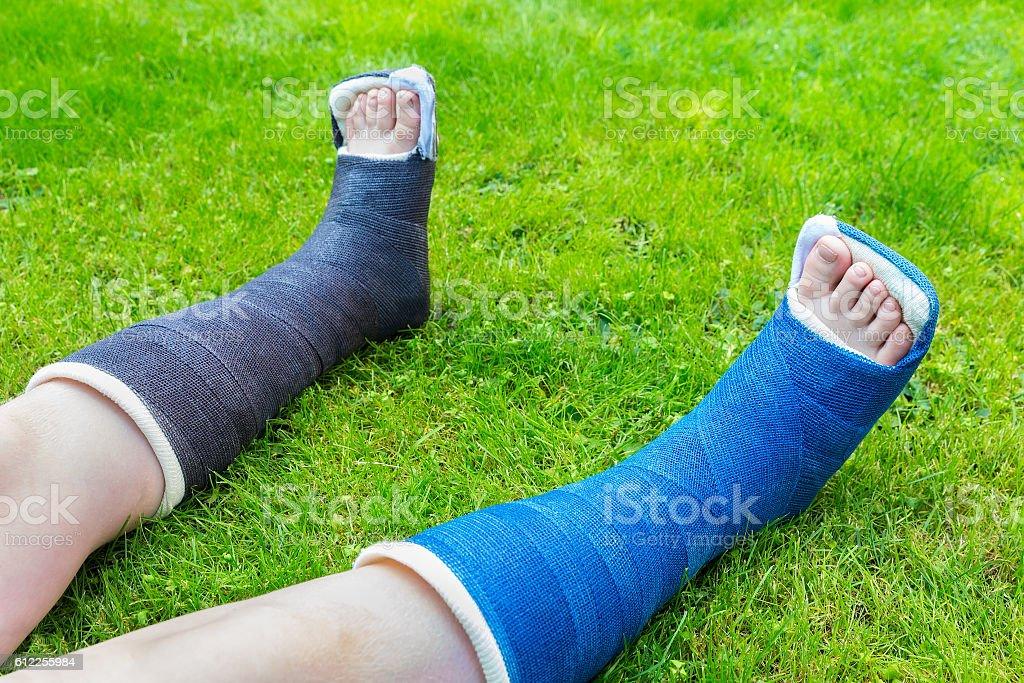 Two gypsum legs of boy on grass stock photo