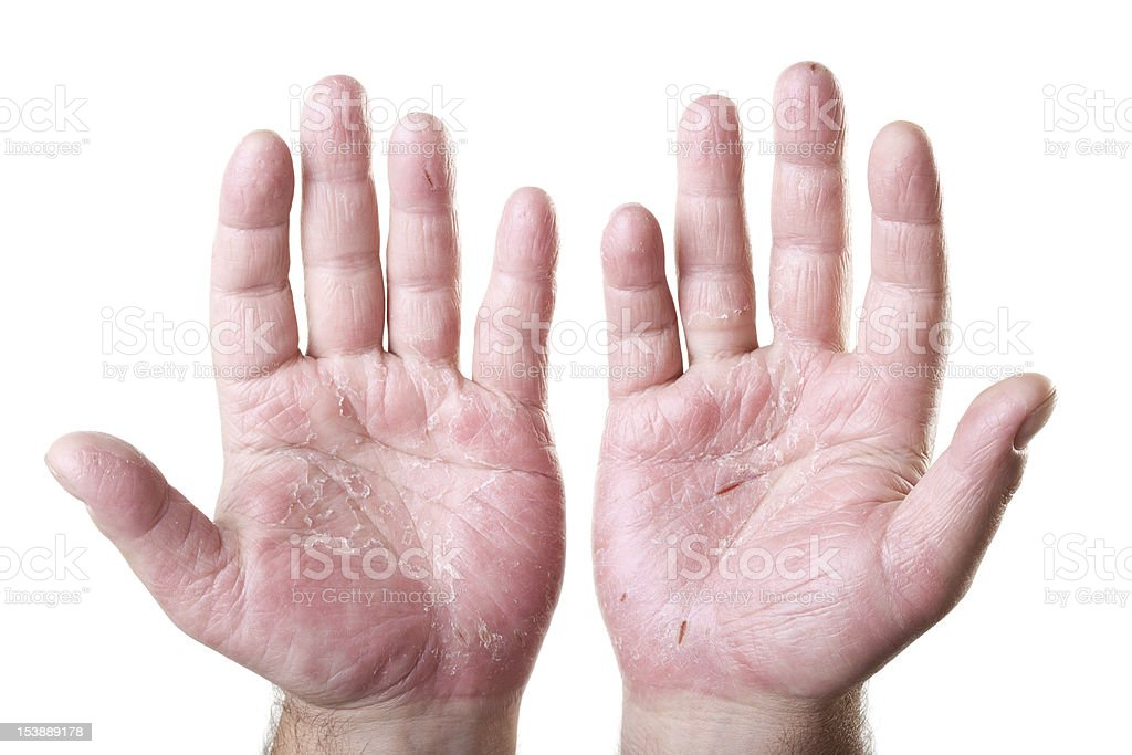 two male palms with eczema isolated on white background royalty-free stock photo