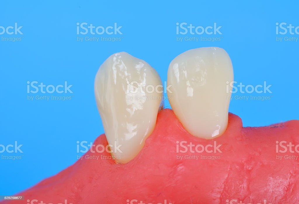 two tooth stock photo
