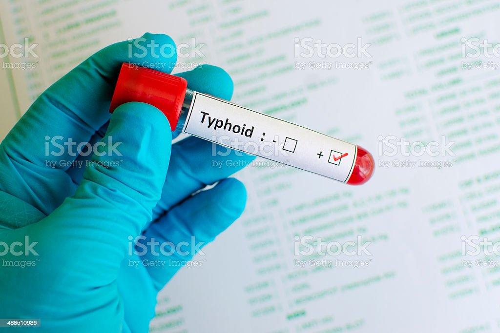Typhoid positive stock photo