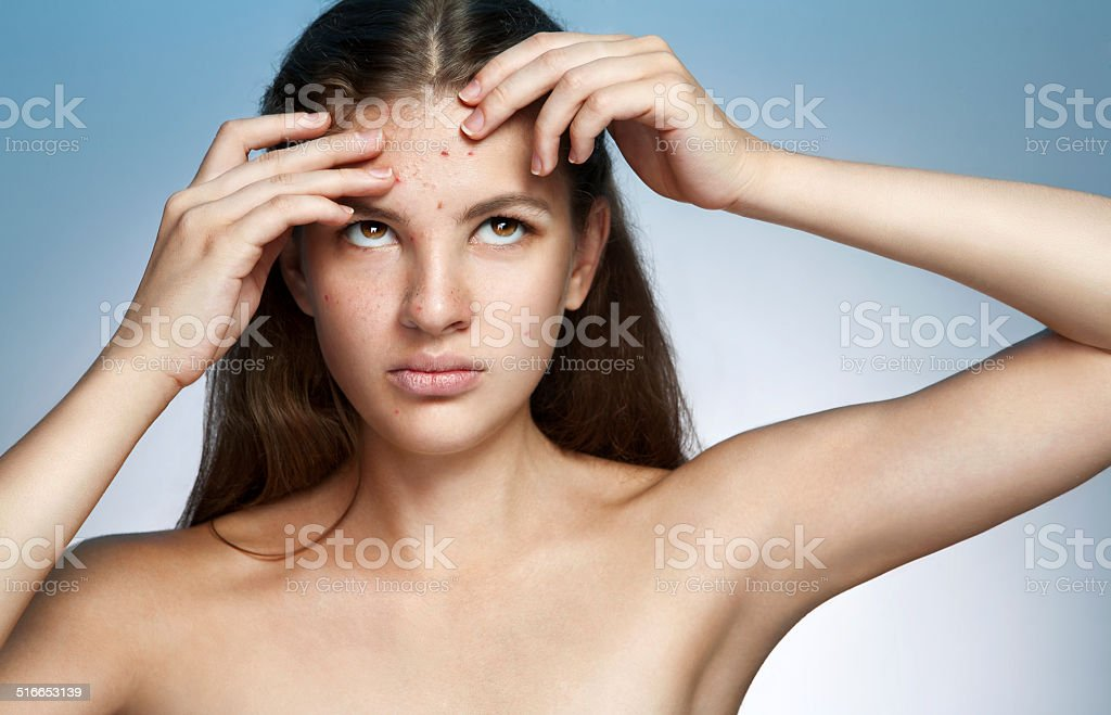Ugly problem skin girl. Woman skin care concept stock photo
