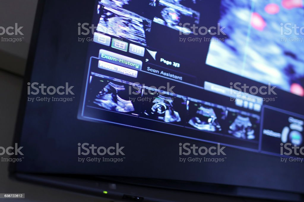 3D Ultrasound Picture of Baby stock photo