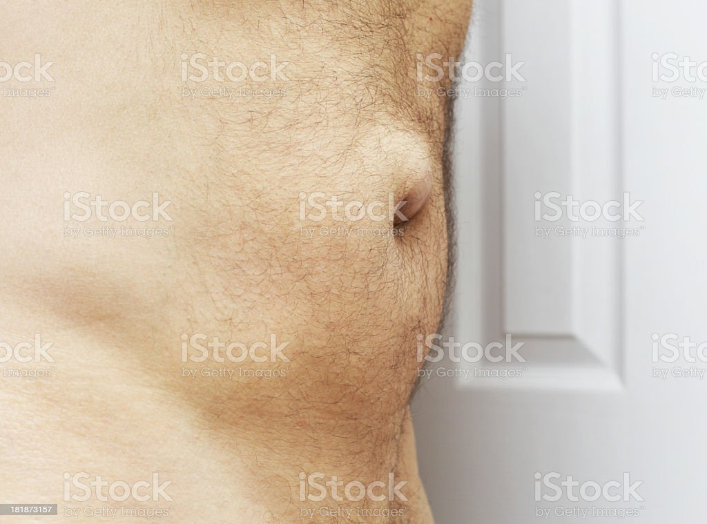 Umbilical Hernia Side View stock photo