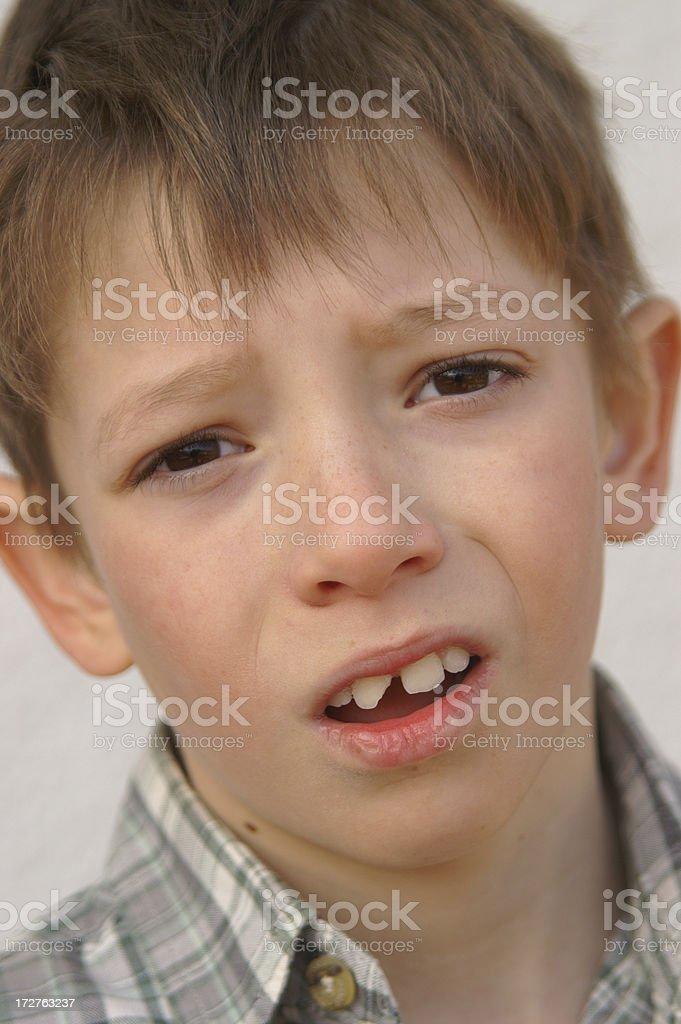 Unhappy boy has broken his tooth stock photo