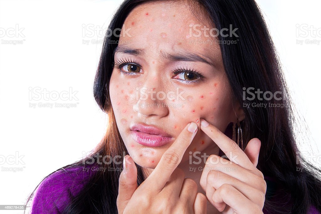 Unhappy girl touching pimple on cheek stock photo