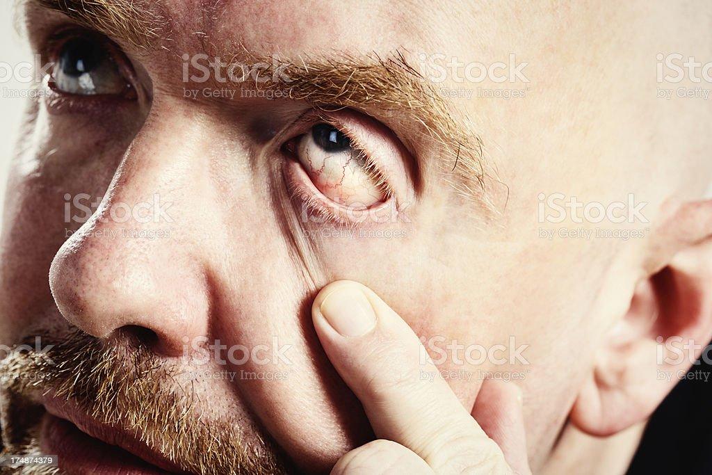 Unhappy man shows his bloodshot eye: hangover or conjunctivitis stock photo