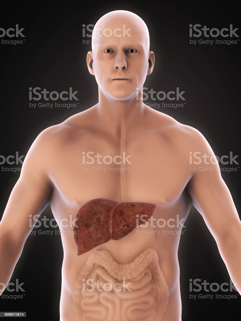 Unhealthy Liver Anatomy stock photo