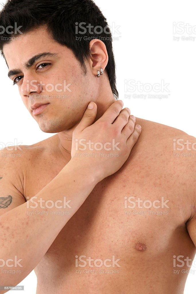 unhealthy young man stock photo
