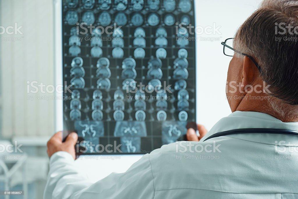 Unrecognizable senior doctor examines MRI image stock photo