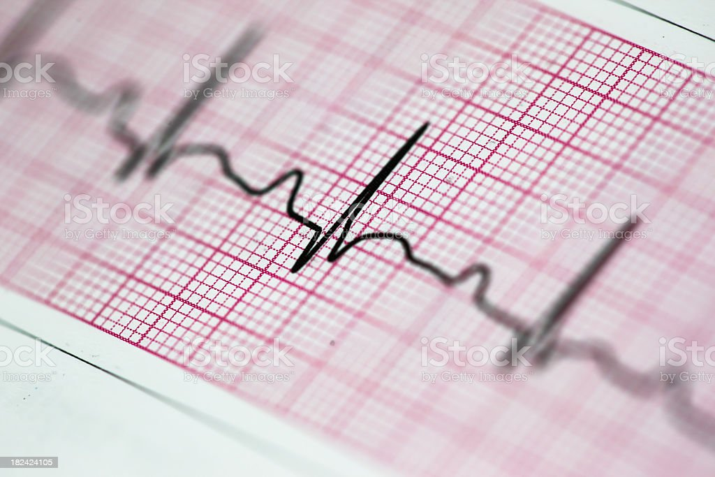 Up close photo of an electrocardiogram reading stock photo