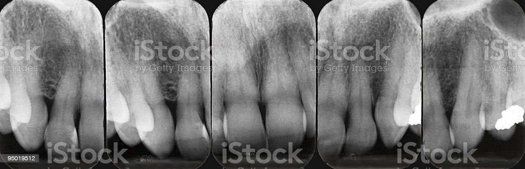 Upper Periodontal X-rays stock photo