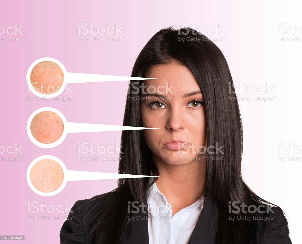 Upset young woman. Callouts with zoom portions of skin stock photo