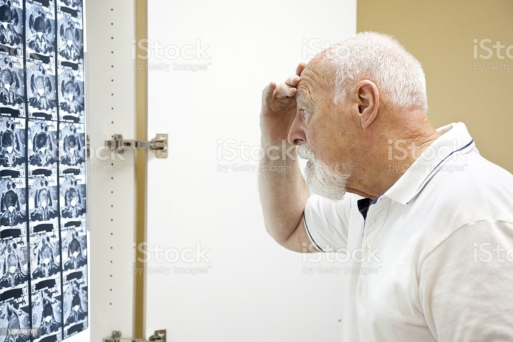 Upsetting Medical Results royalty-free stock photo