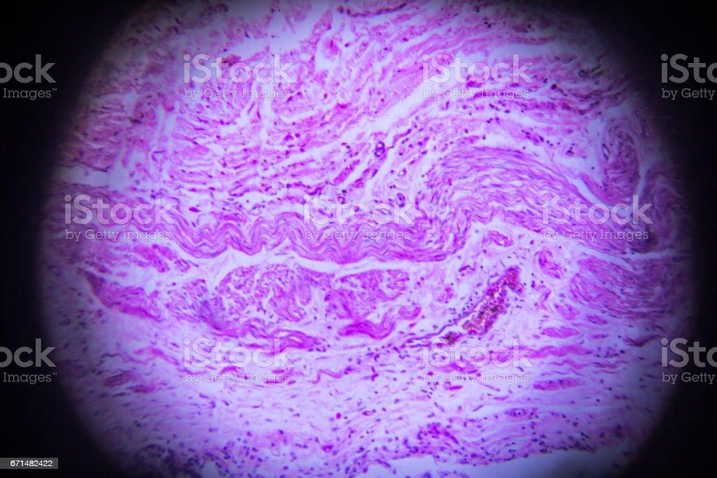 Ureter C.S. in microscopy stock photo
