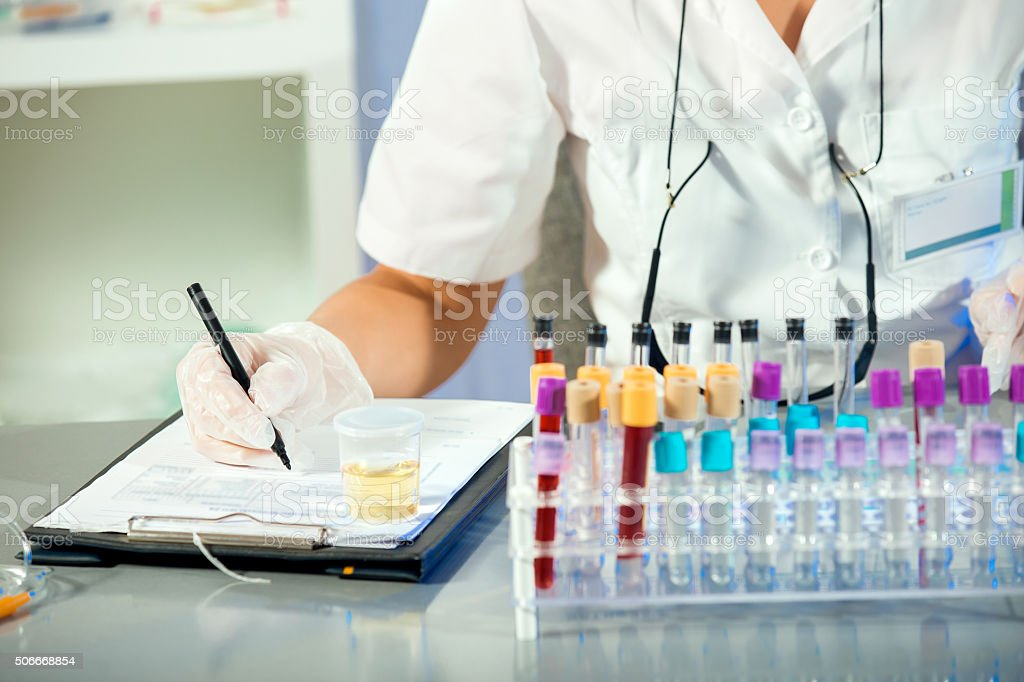 Urinalysis stock photo