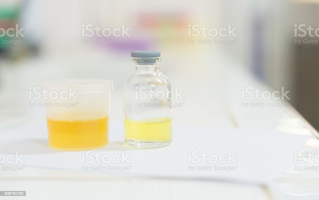 urine analysis in laboratory in white tone. stock photo