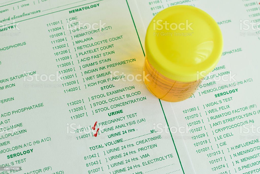 Urine analysis stock photo