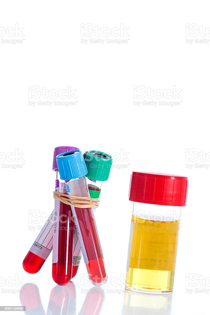 Urine and blood sample on a form for examination stock photo