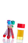 Urine and blood sample on a form for examination