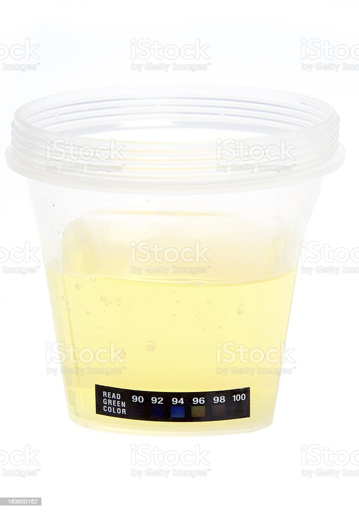 Urine for drug test stock photo