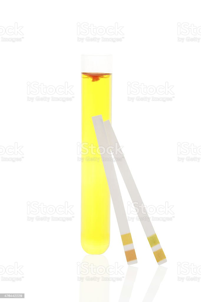 Urine in test tube and pH litmus strips. stock photo