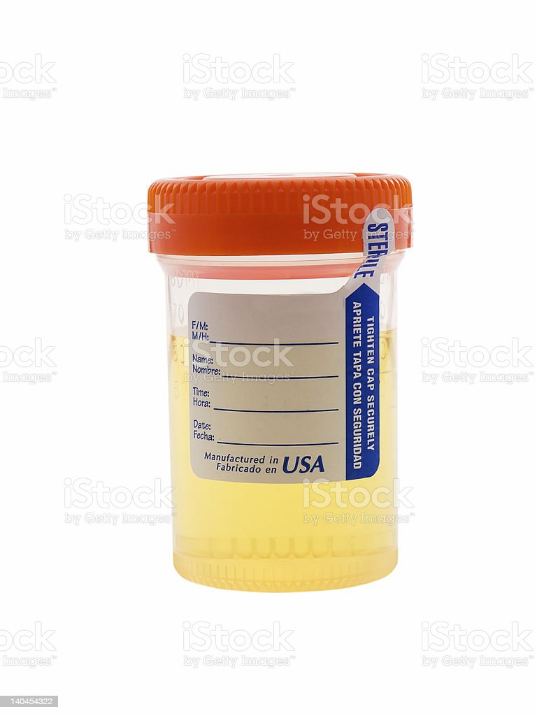 Urine Sample royalty-free stock photo