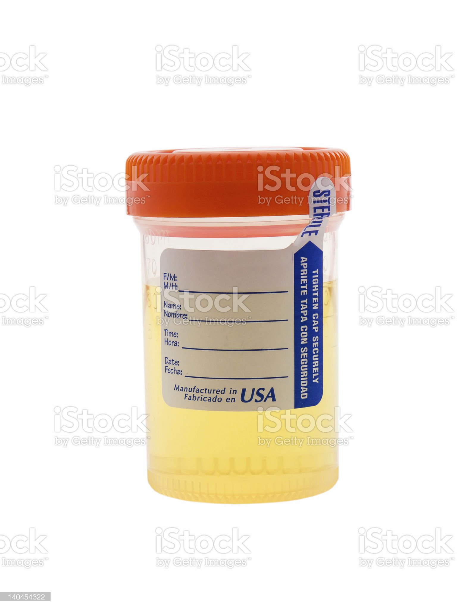 Urine Sample royalty-free stock photo