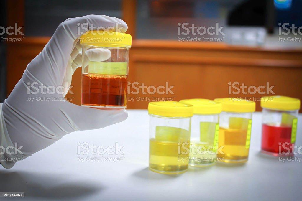 Urine sample stock photo