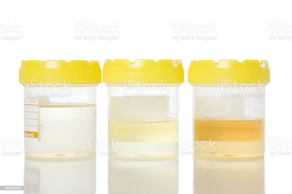 Urine Samples royalty-free stock photo