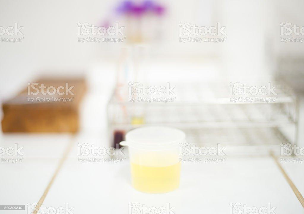 Urine specimen for urine examination in laboratory. stock photo