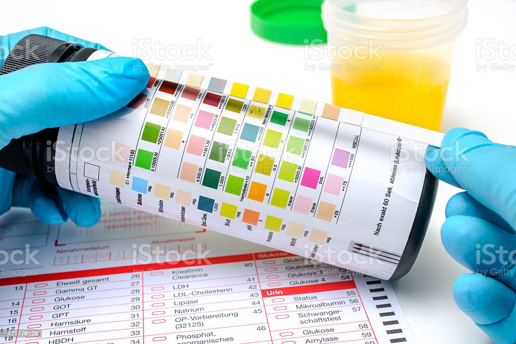 Urine test strips royalty-free stock photo