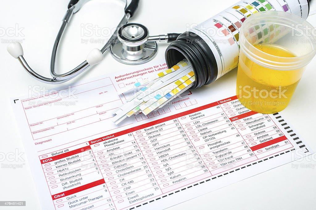 Urine test strips royalty-free stock photo