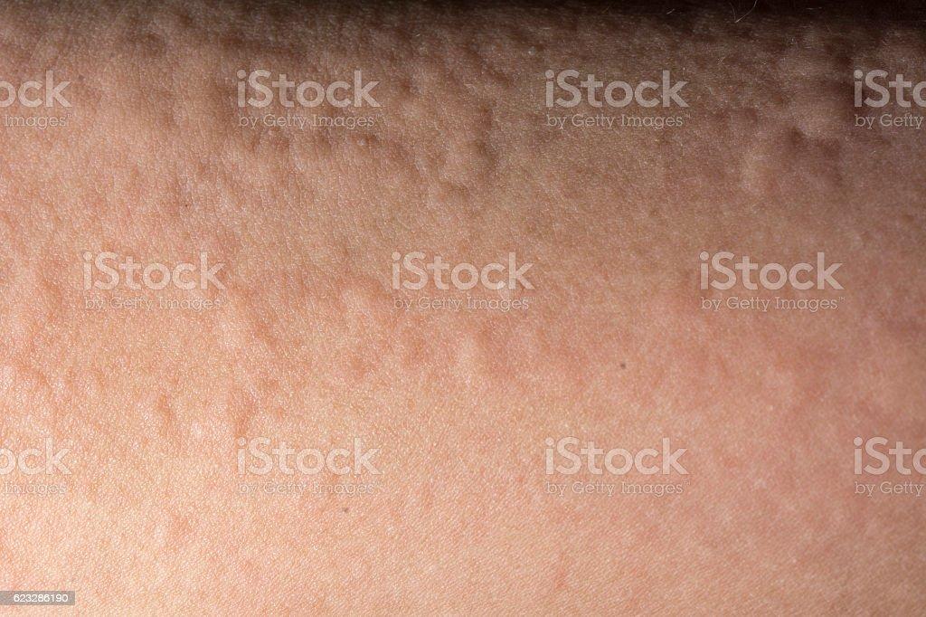 urticaria or allergy rash stock photo