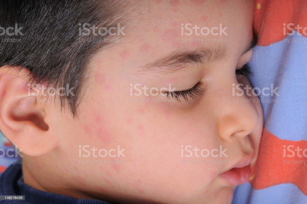 Urticaria stock photo