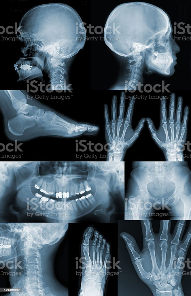 Useful X-Ray images royalty-free stock photo