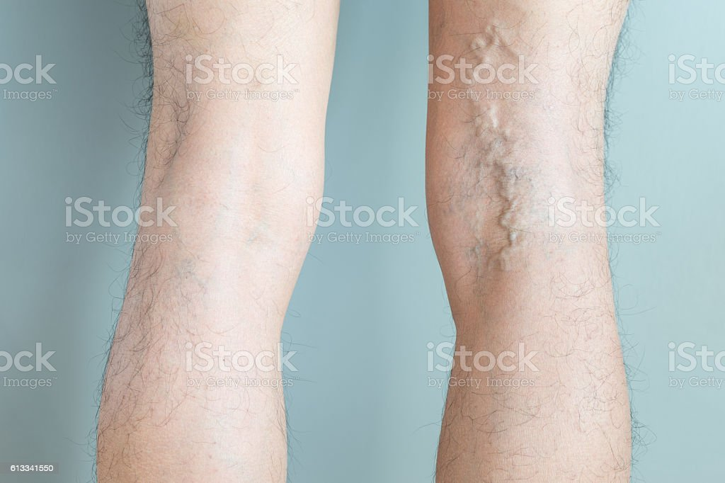 Varicose and spider veins on legs stock photo