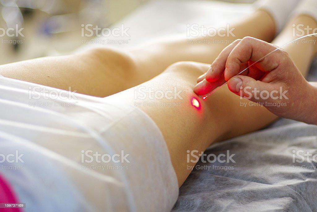Varicose laser treatment stock photo