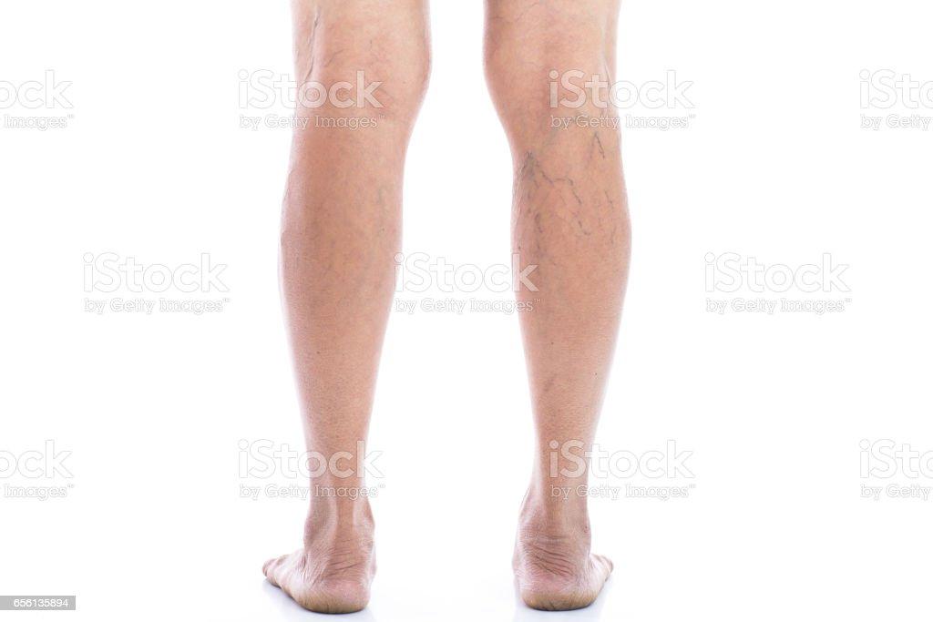 Varicose vein Isolated on white stock photo